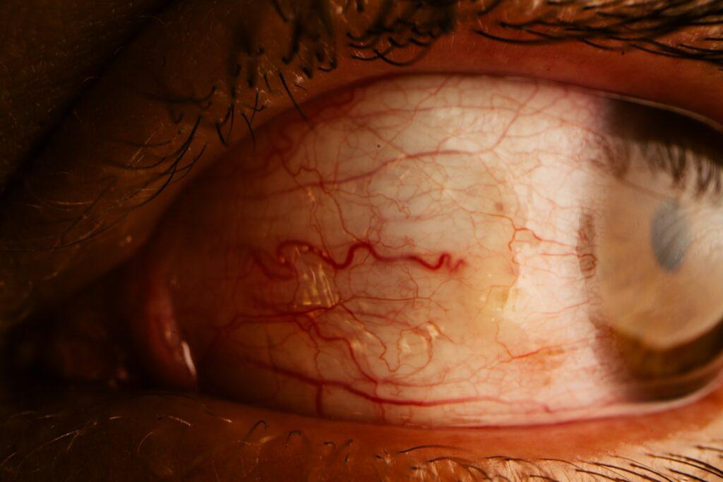 Bloodshot human eye